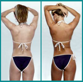 Bronze Hamptons Spray Tan at E Day Spa and Salon