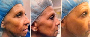Before and after using Hydrafacials new ctgf solution